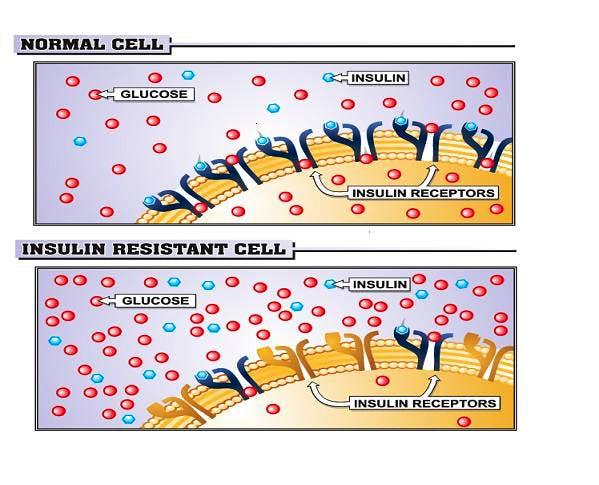 sensibilita insulinica