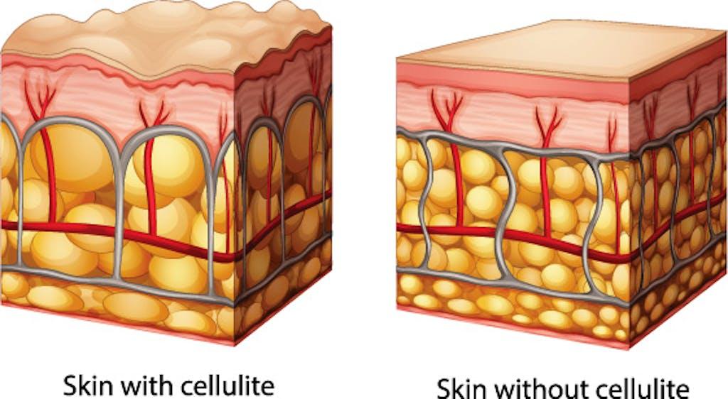 circolazione cellulite